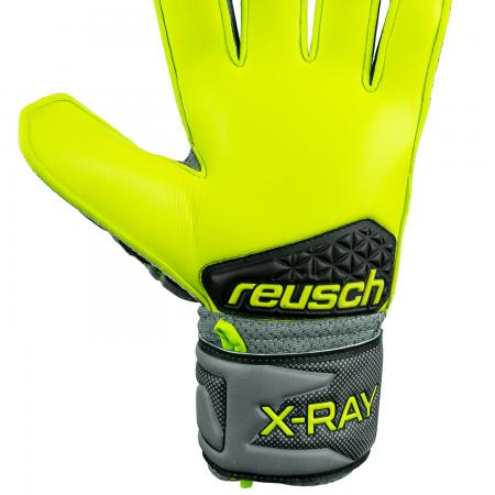 X-Ray 3 SD Junior Open Cuff